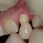 Искусственная коронка на зуб