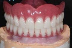 protezirovanie-na-implantah-07