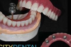 protezirovanie-na-implantah-09