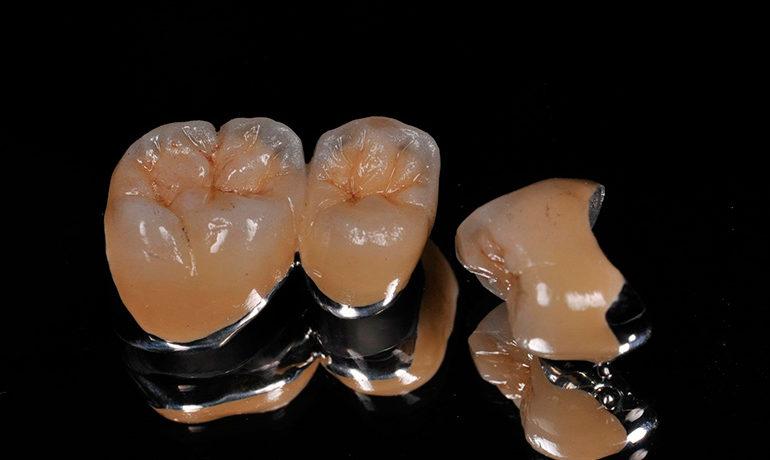 Металлокерамика в стоматологии