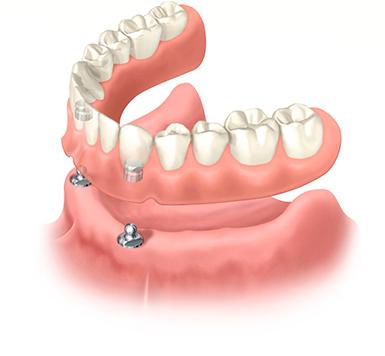 зубные протезы виниры купить